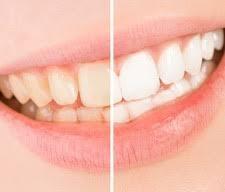 ★歯を白くするだけじゃない★