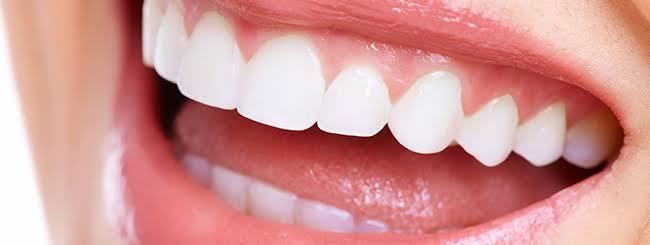 ★他人の歯を汚いと思った事はありませんか?★