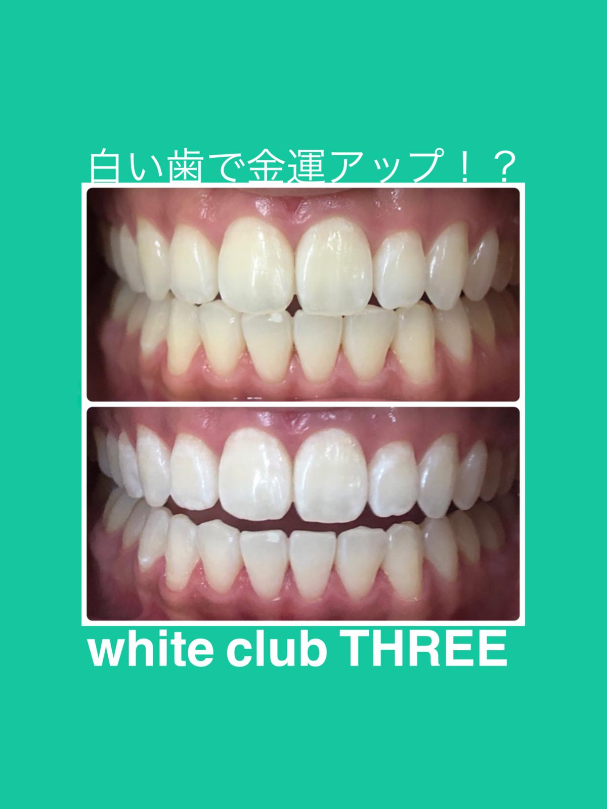 ★白い歯と金運の関係★